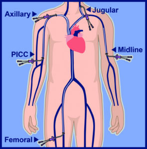 PICC Lines Overview