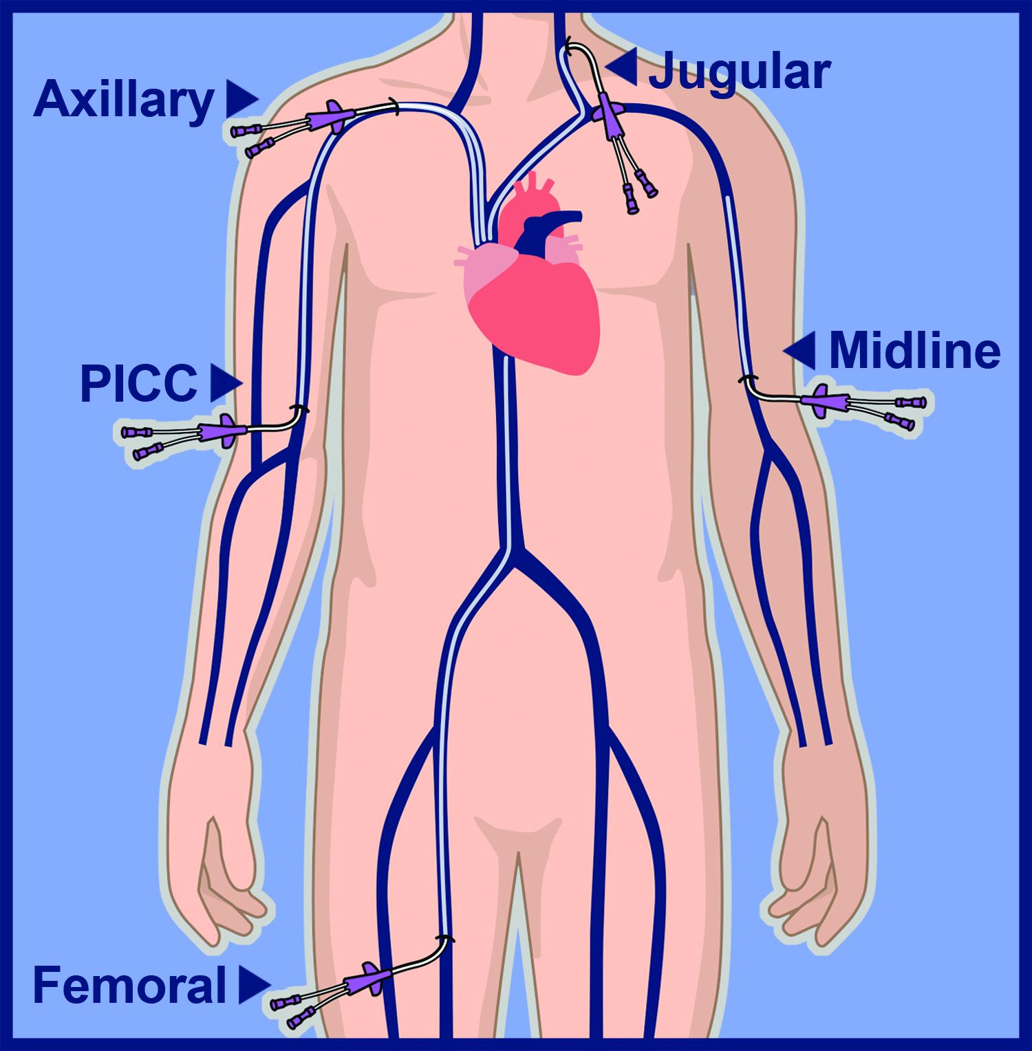 Central Venous Catheters & Midline Catheter (non-central)