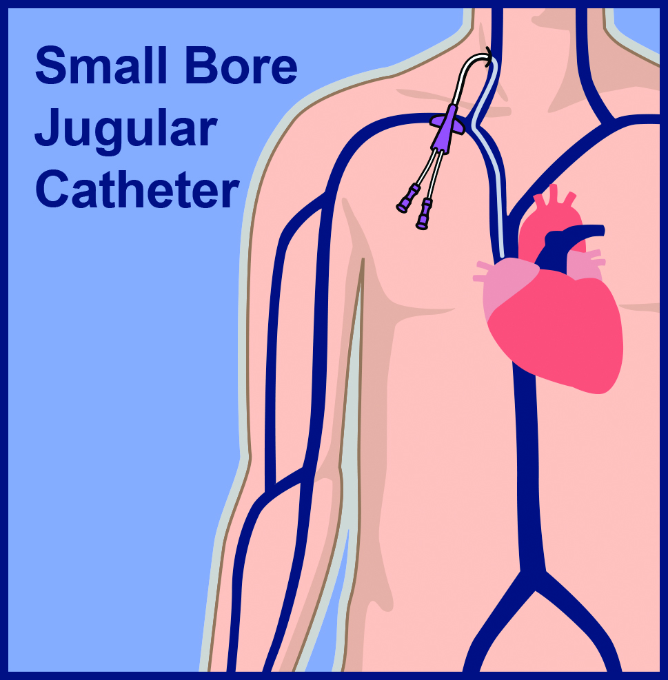 Small Bore Internal Jugular Central Venous Line