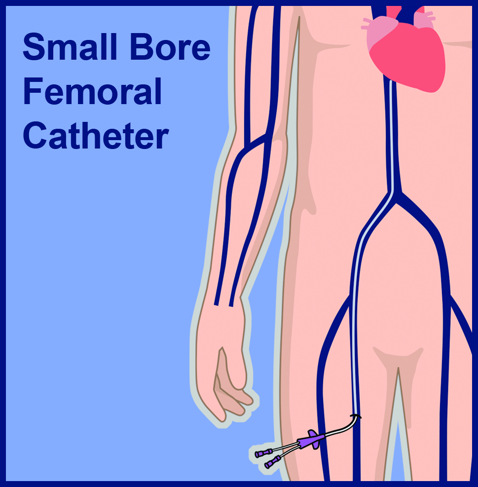 Small Bore Femoral Central Venous Catheter Line