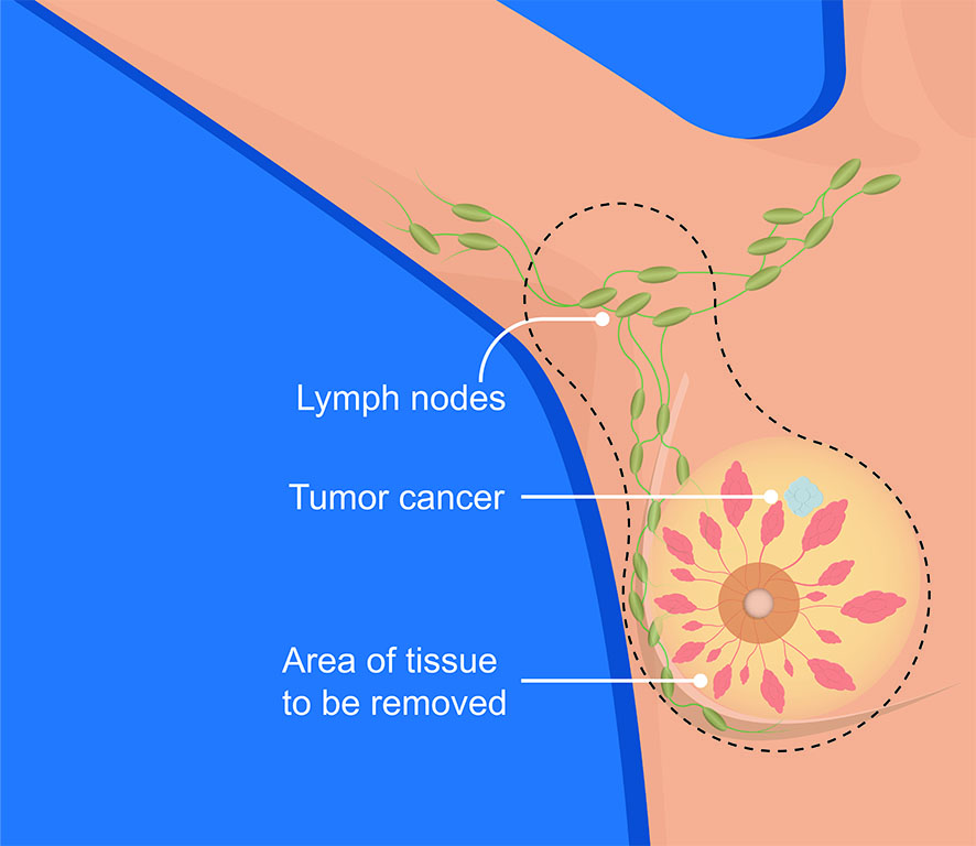 Mastectomy Breast Cancer Lymph Node Dissection